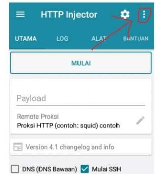 Setting HTTP Injector kartu XL